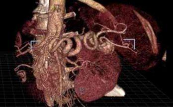 виртуальная реальность в медицине